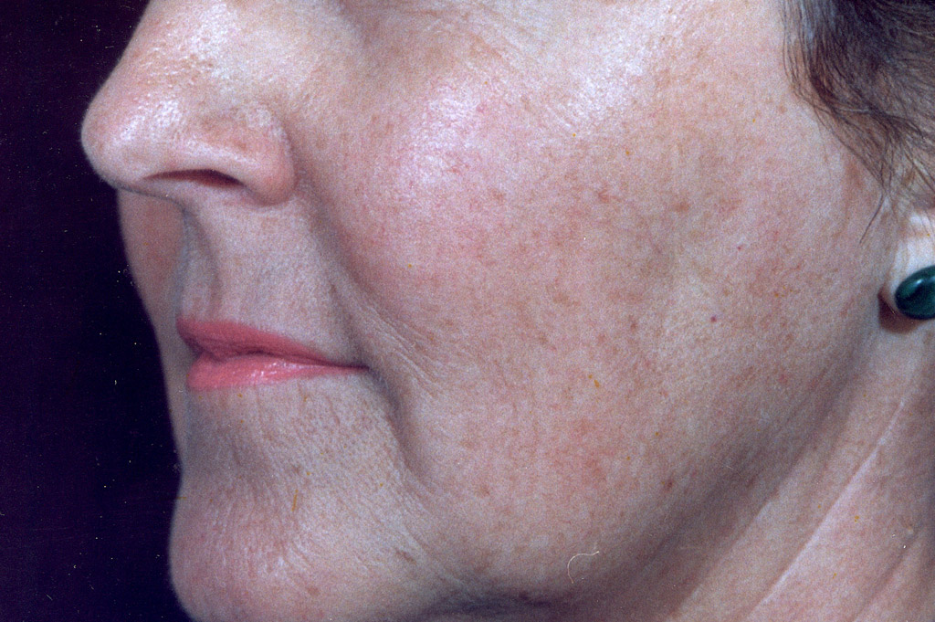 Environ Skin Care | What it can do for skin - Ageing Skin - After