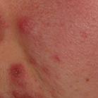 Skin Breakouts