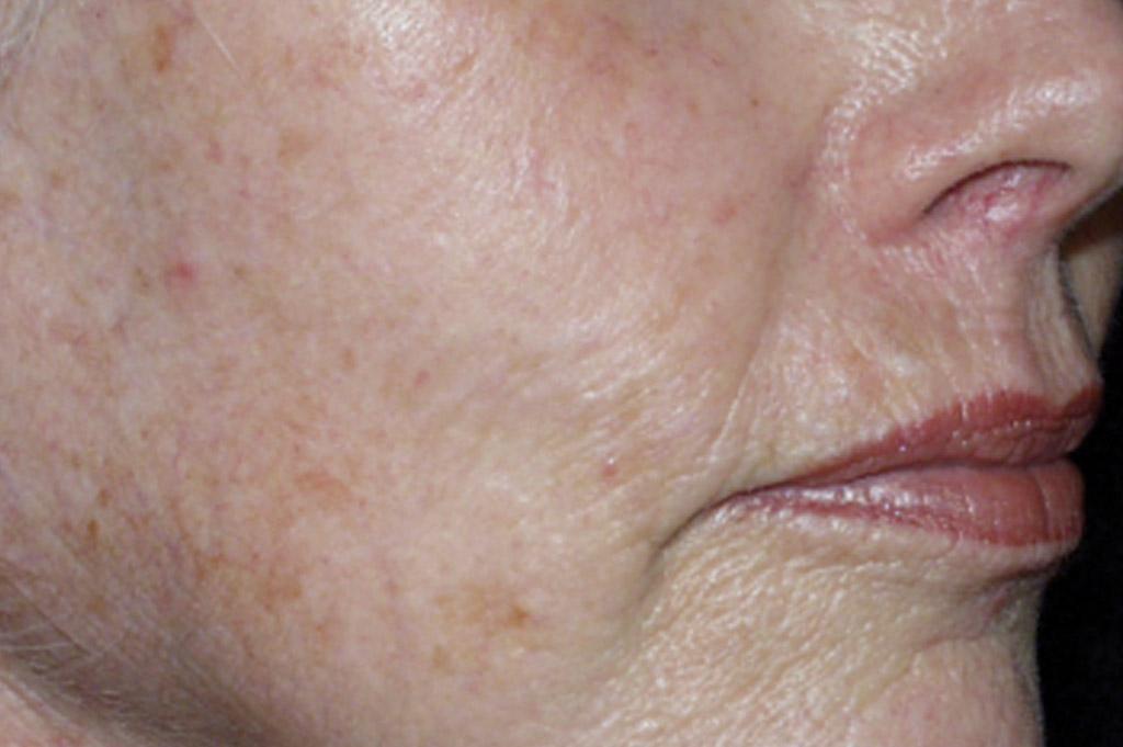 Environ Skin Care - Sun Damaged Skin - Before & After