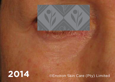 Environ Skin Care | 2014 - 19 years after using Ionzyme C-Quence Range & Ionzyme DF Machine Treatments