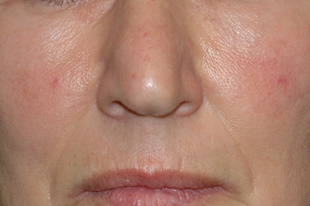 Environ Skin Care - Skin Sensitivity - Before & After