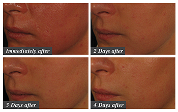 Before and after collage of 4 images of the cheek area