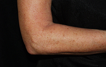 After, image of the firm skin on womens arm