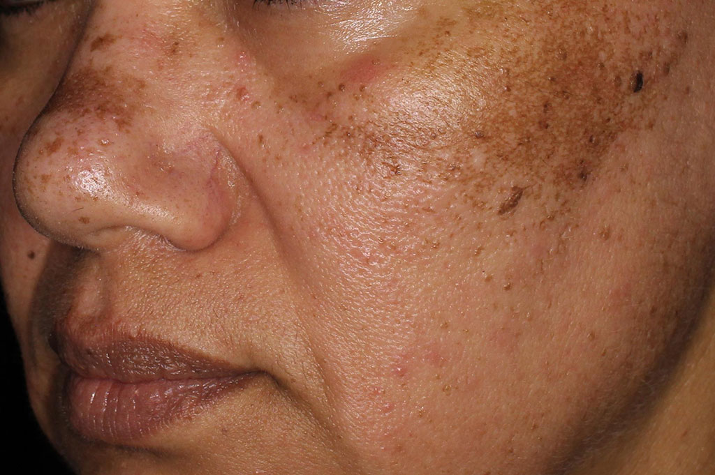 Pigmentation Before & After | Environ Skin Care