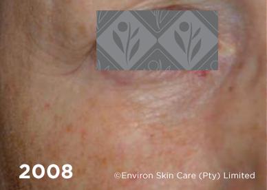 2008 2 | Environ Skin Care