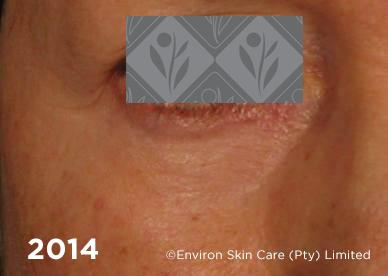 2014 2 | Environ Skin Care