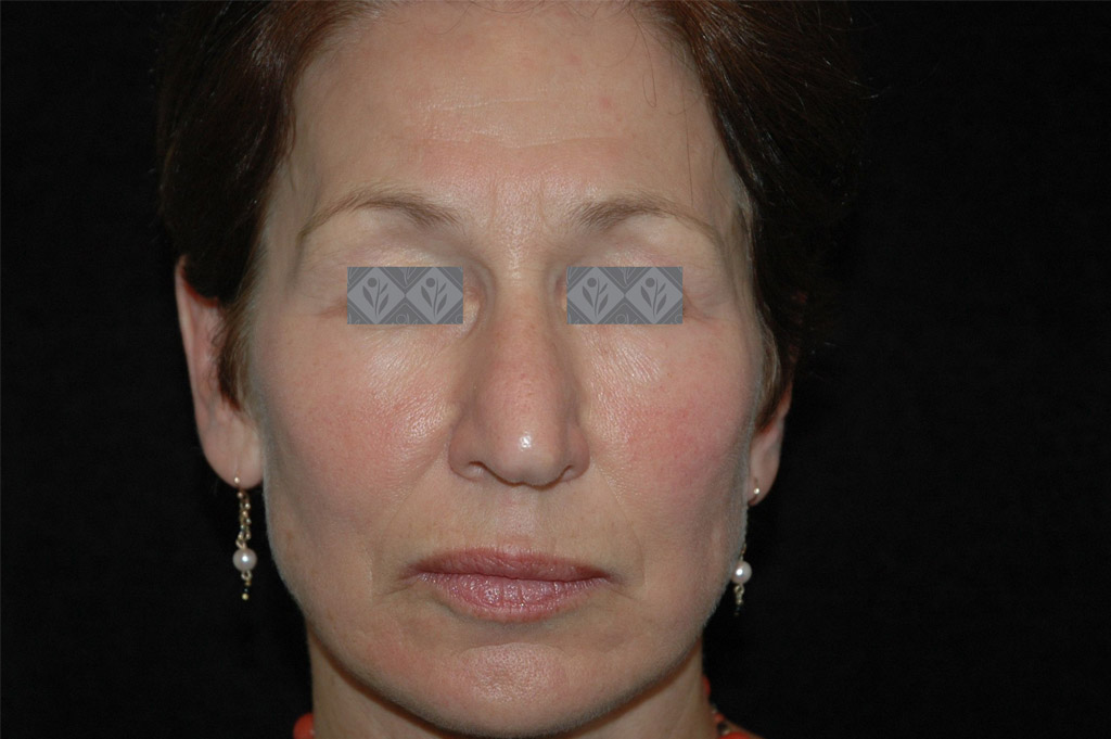 Sensitivity Before & After   Environ Skin Care