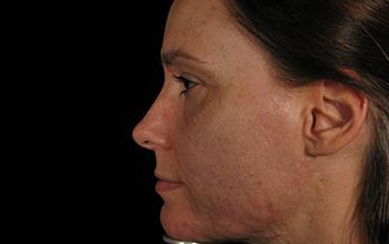 Left side image of Pamela Addison's face before treatment